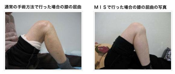 人工膝関節